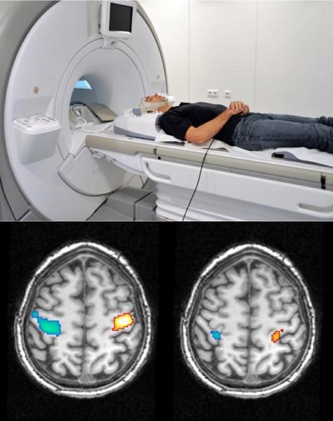 Сканы активности мозга: при воображаемом сжатии рук в кулак (слева) и в осознанном сновидении (справа). Голубая зона - управление правой рукой, желтая - левой.