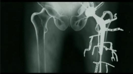 metalosis-maligna
