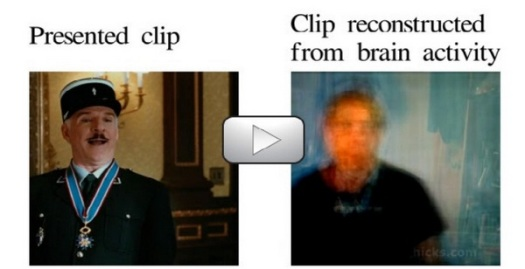 brain-clip