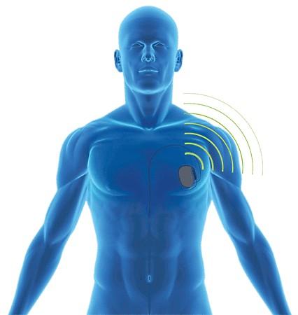 med-implant