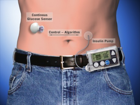Insulin-Pump