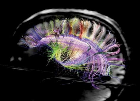 1-brainside